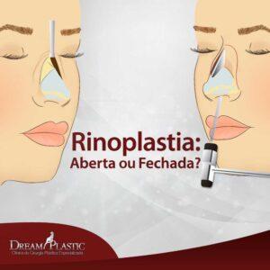 artigo-rinoplastia