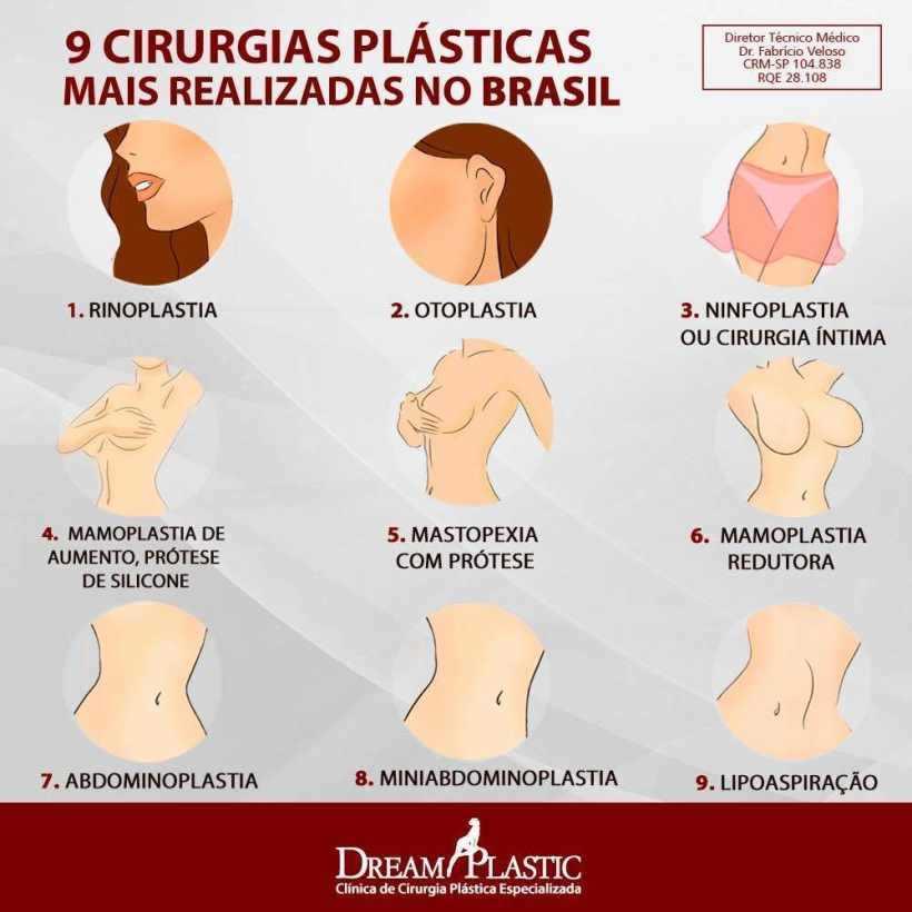 Ilustração Cirurgias plasticas populares