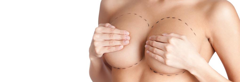 redução mama cicatriz