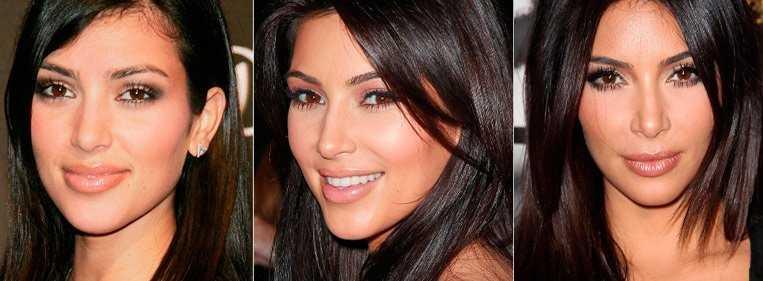 kim kardashian antes e depois