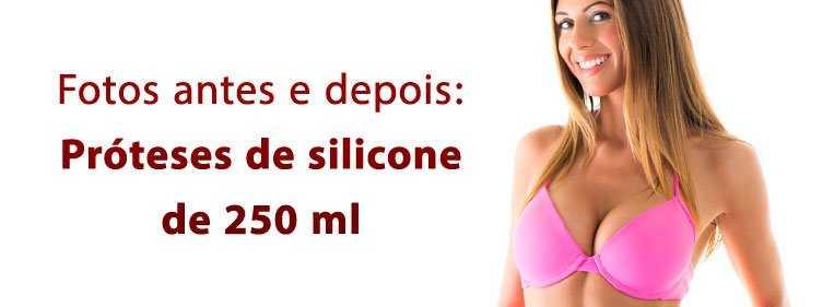 250 ml silicone