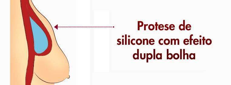 protese silicone mais natural