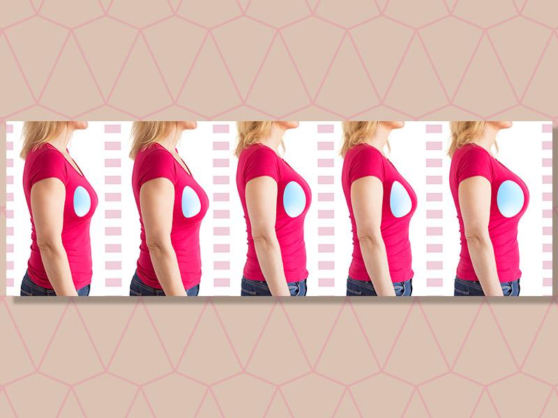 implante de próteses de silicone mamário