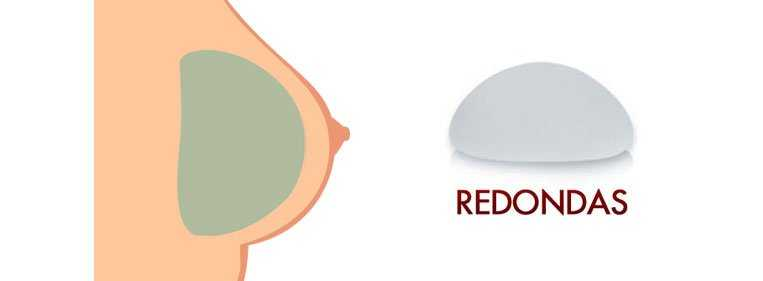 protese conica ou redonda