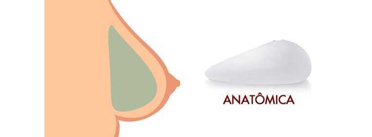 protese de silicone gota