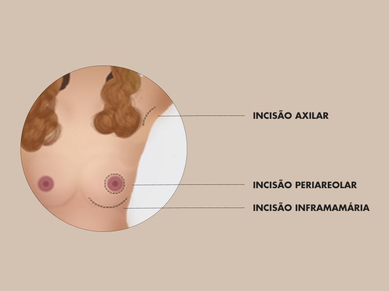 mamoplastia aumento axilar areolar cicatriz