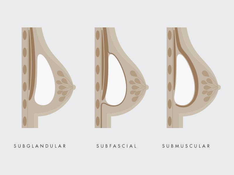 mamoplastia aumento subsfacial