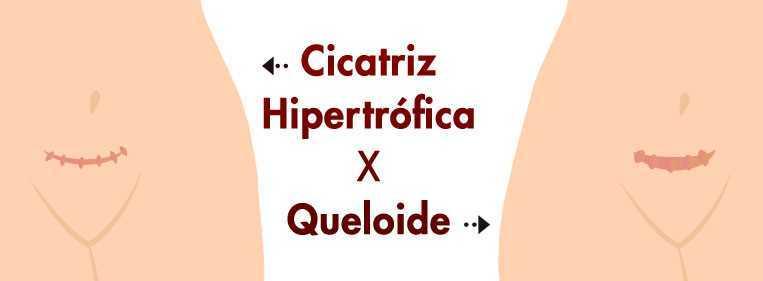 cicatriz hipertrófica e queloide