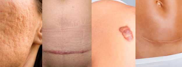 tipos cicatriz