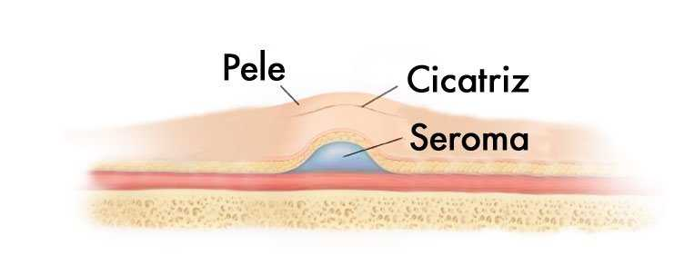 O que é Seroma?
