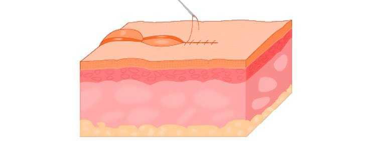 ponto aberto cirurgia