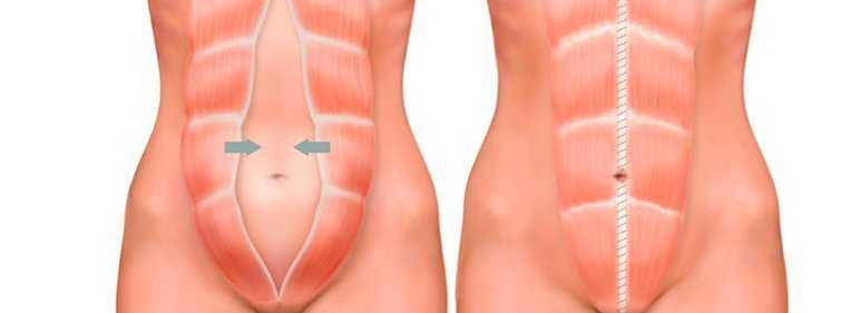 diástase abdominoplastia