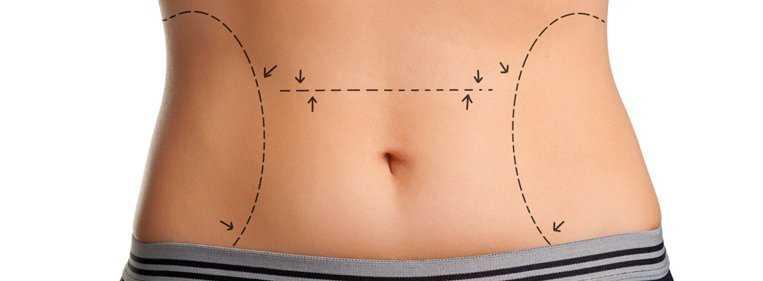cirurgia de retirada de pele