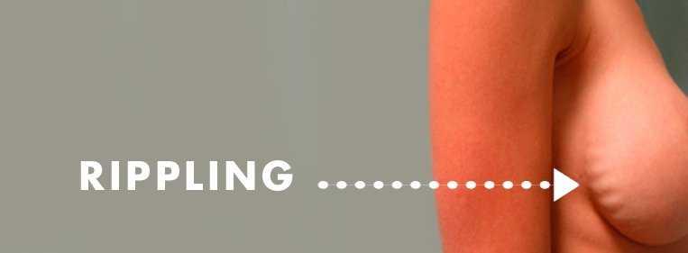 rippling protese mama