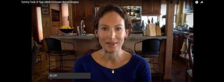 cirurgia abdominoplastia video