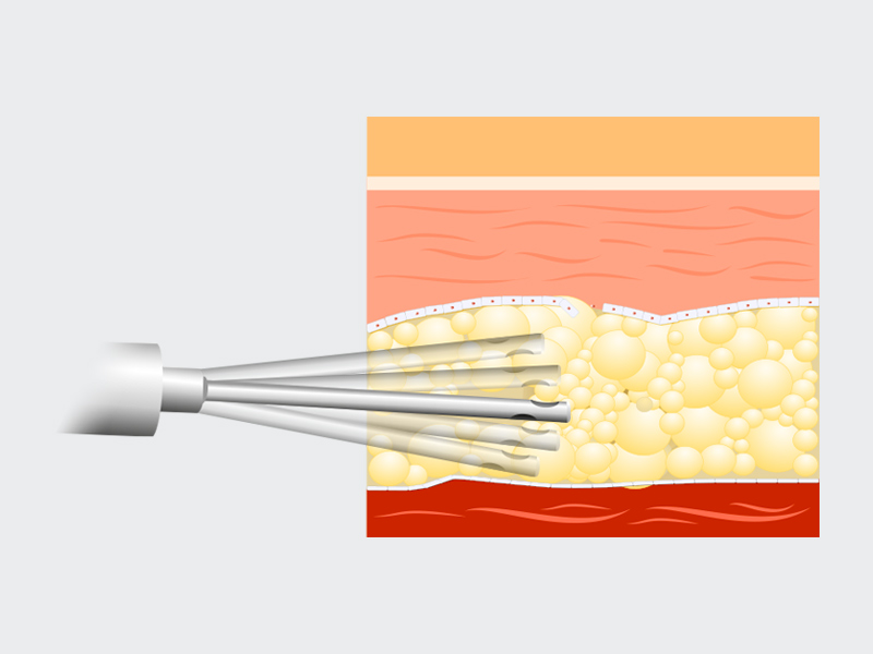 vibrolipo barriga