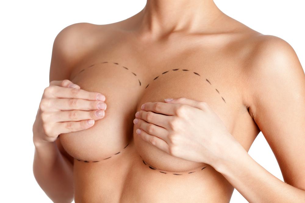 2 Procedimento Mama Linhas