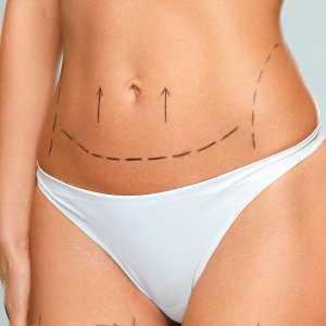 Lipoaspiração vídeo para mulheres que realmente querem eliminar gordura localizada
