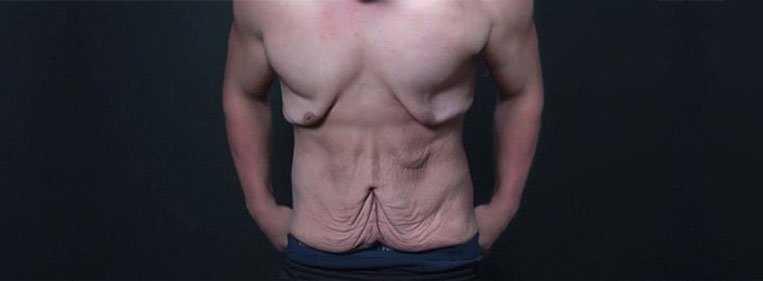 abdominoplastia homem