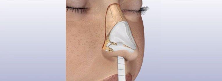 osso nariz
