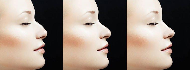 fibrose nariz