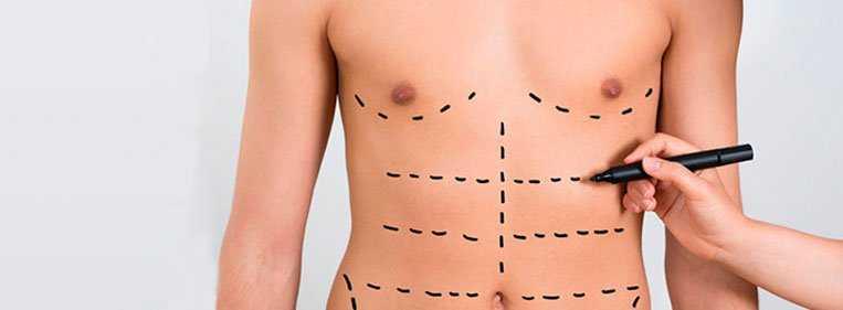 cirurgia abdominoplastia masculina