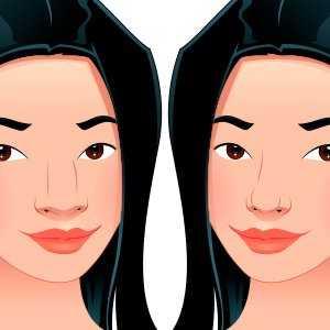 Rinoplastia: antes e depois de 7 famosas. Resultados surpreendentes para você se inspirar!