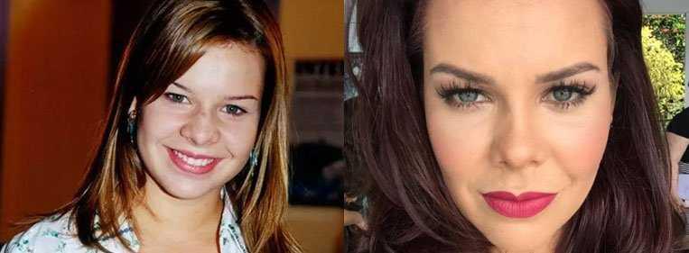 nariz batata antes e depois