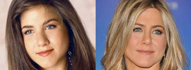 rinoplastia antes e depois nariz de batata