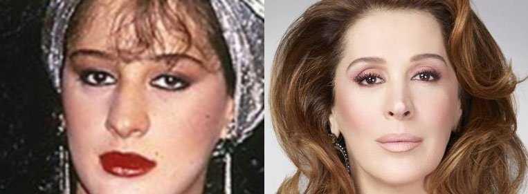 antes e depois rinoplastia