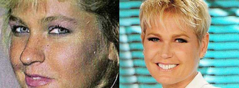 rinoplastia nariz largo antes e depois