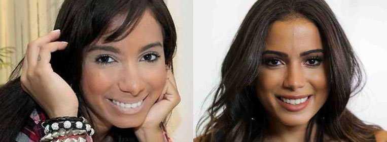 Nariz da Anitta antes e depois