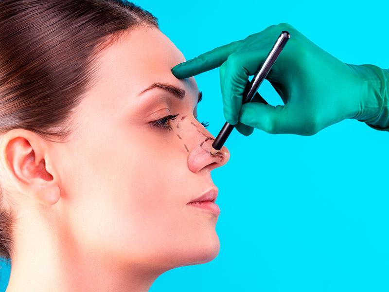 cirurgia desvio septal