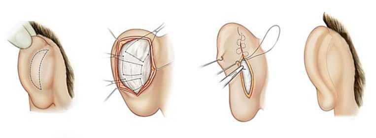 Como é feita a cirurgia de orelha de abano