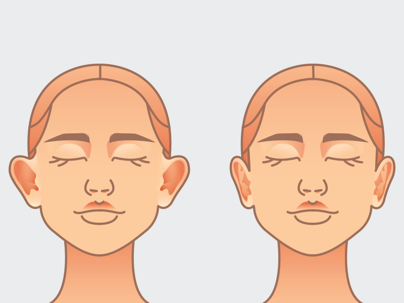 cirurgia orelha abano antes depois