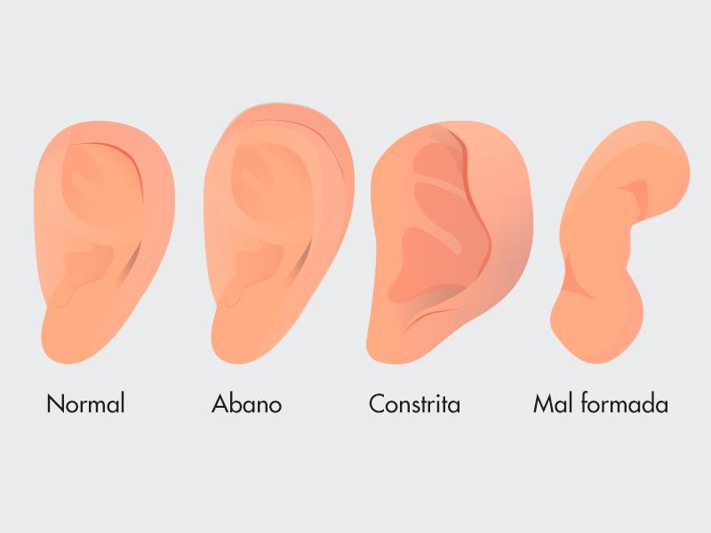 tipos orelhas