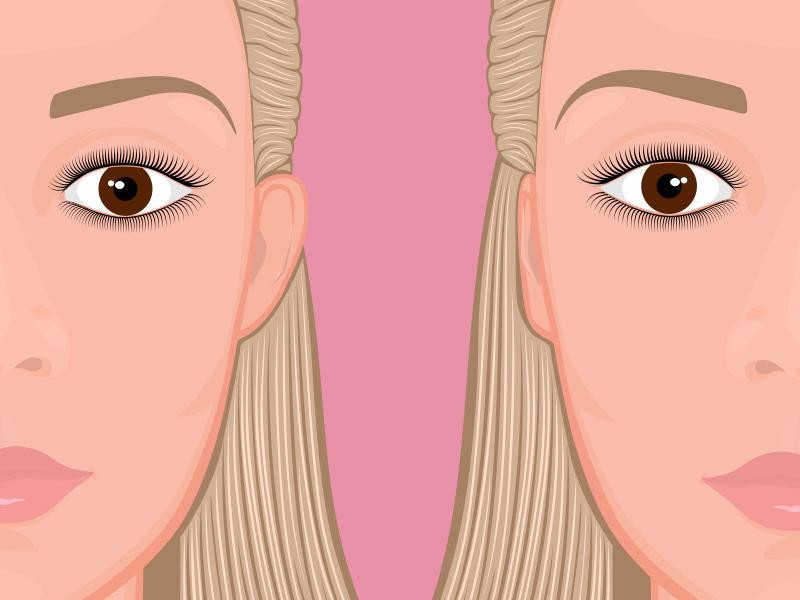 orelhas proeminentes