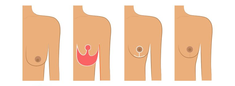 Como é feita a cirurgia de mastopexia?
