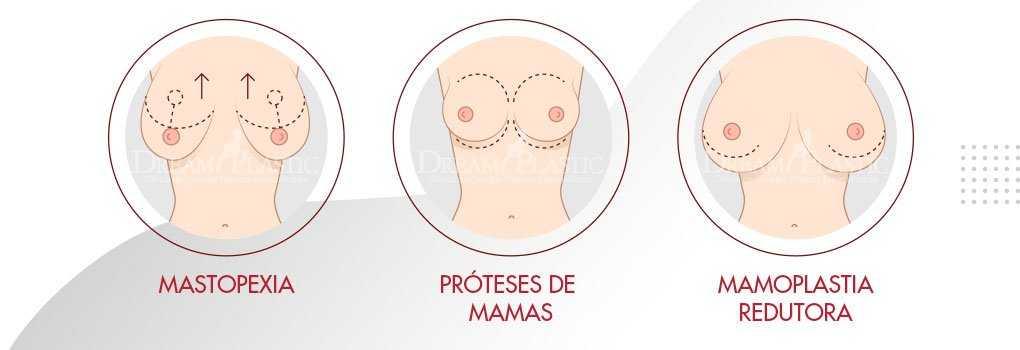 cirurgia mamoplastia
