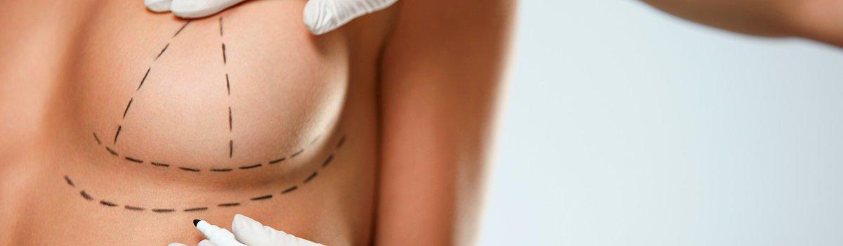 cirurgia plástica de mama