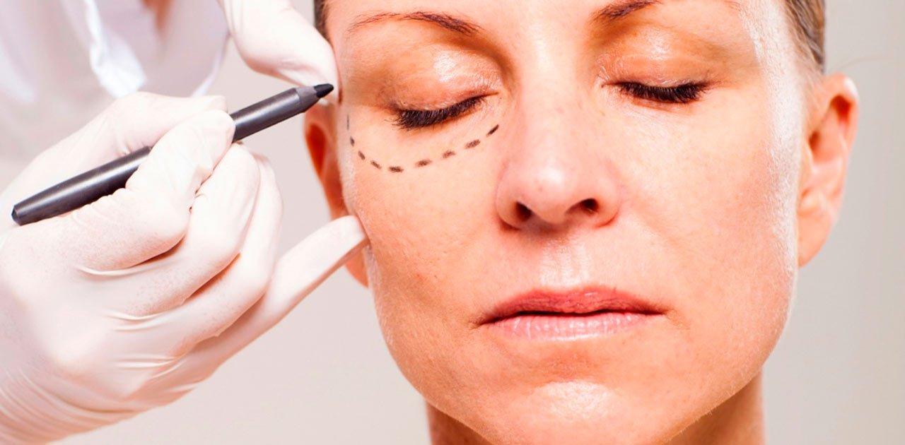 bolsas olhos cirurgia