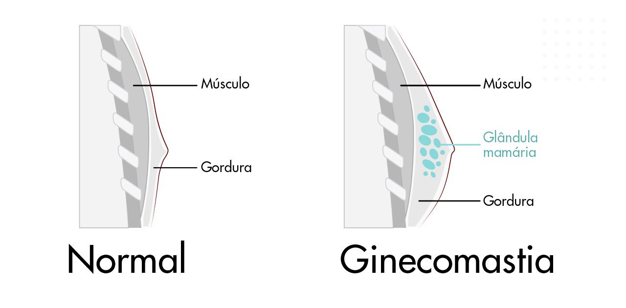 Ginecomastia causas