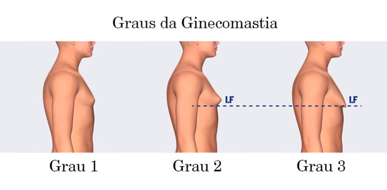 Ginecomastia grau 1