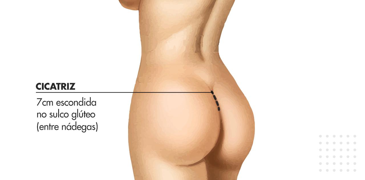 cicatriz de Gluteoplastia