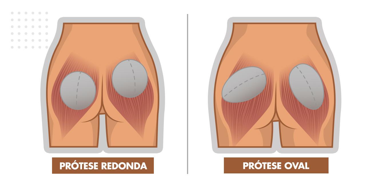 Prótese de Glúteo Oval ou Redonda