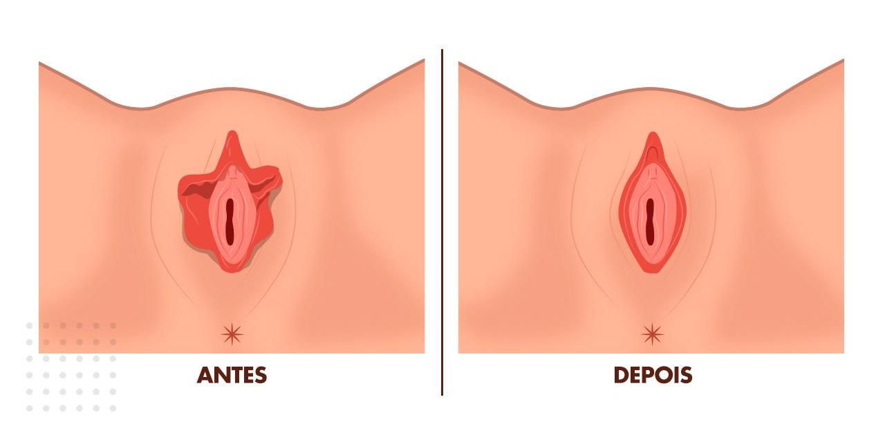 nifoplastia