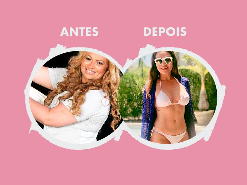 plastica abdomen antes e depois