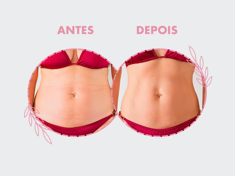 resultados abdominoplastia antes e depois