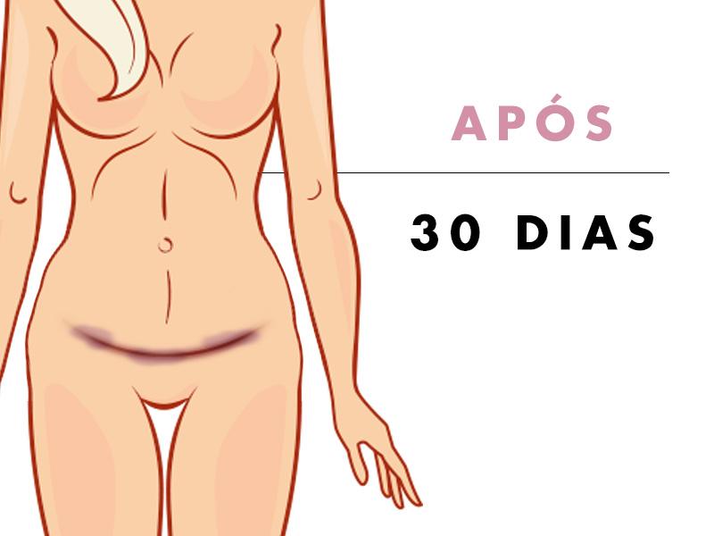 abdominoplastia depois 30 dias