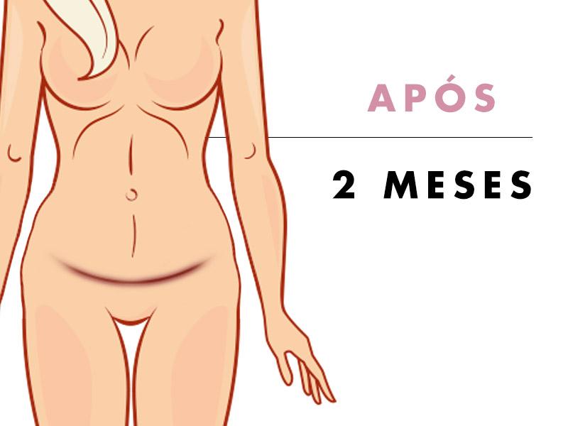 fotos abdominoplastia apos 2 meses